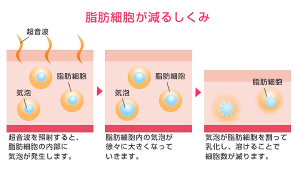 脂肪細胞が減る仕組み 超音波を照射すると、脂肪細胞の内部に気泡が発生します→脂肪細胞内の気泡が徐々に大きくなっていきます→気泡が脂肪細胞を割って乳化し、溶けることで細胞数が減ります。